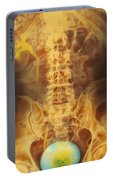 Full Bladder Color Xray Urogram Portable Battery Charger