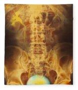 Full Bladder Color Xray Urogram Fleece Blanket