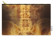 Full Bladder Color Xray Urogram Carry-all Pouch