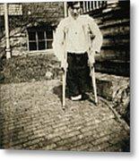 Child Labor, Frank, Whose Legs Were Cut Metal Print