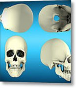 View Of Human Skull From Different Metal Print