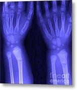 Broken Wrist Metal Print by Ted Kinsman