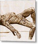A Flayed Cadaver Metal Print