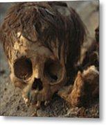 A Close View Of A Human Skull Metal Print