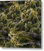 Fractal Under The Microscope Metal Print