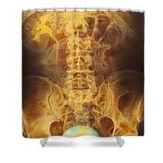 Full Bladder Color Xray Urogram Shower Curtain