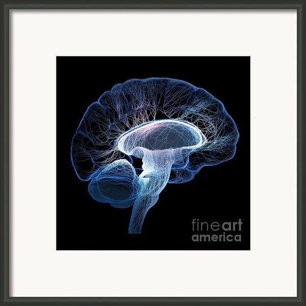 Human Brain Framed Print By Johan Swanepoel