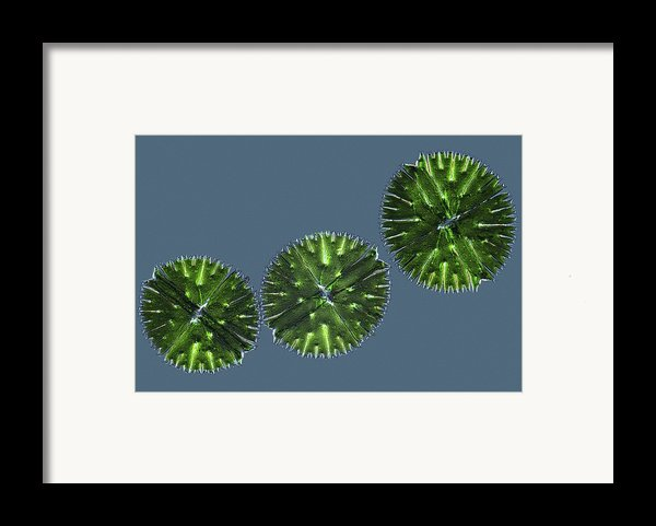 Micrasterias Desmids, Light Micrograph Framed Print By Science Photo Library