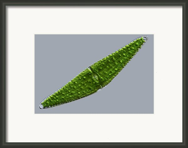 Closterium Desmid, Light Micrograph Framed Print By Science Photo Library