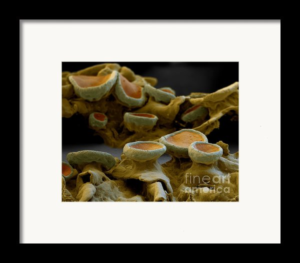 Common Orange Lichen Framed Print By Eye Of Science