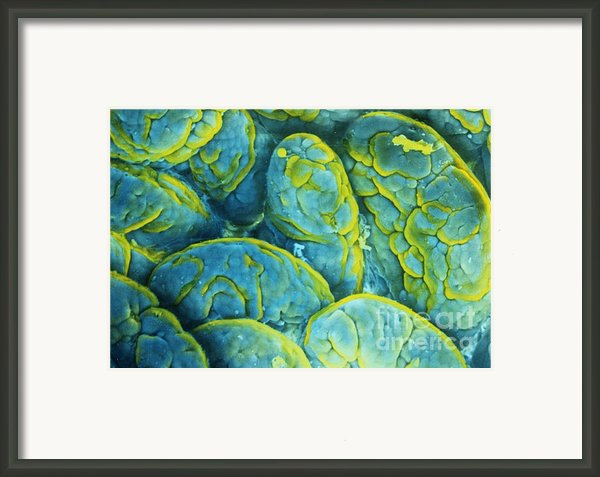 Intestinal Microvilli Sem Framed Print By Spl