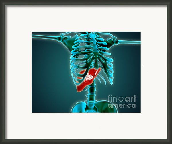 X-ray View Of Human Skeleton With Liver Framed Print By Stocktrek Images