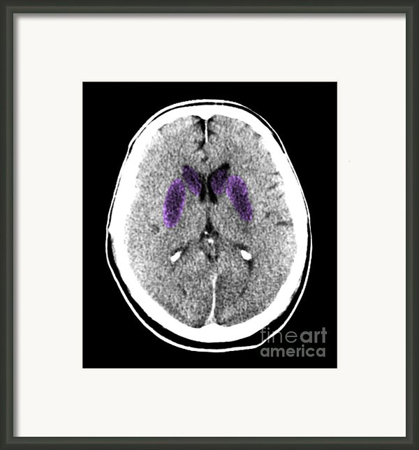 Brain Of A Cardiac Arrest Victim Framed Print By Medical Body Scans