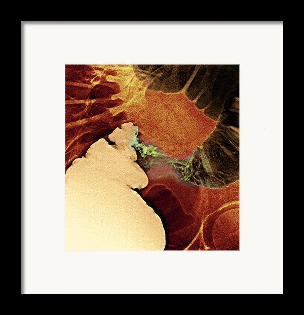 Colon Cancer, X-ray Framed Print By Du Cane Medical Imaging Ltd