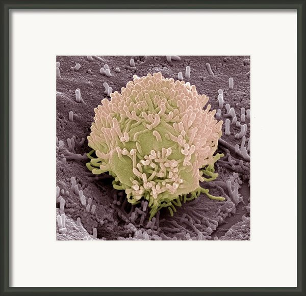 Colorectal Cancer Cell Framed Print By Steve Gschmeissner