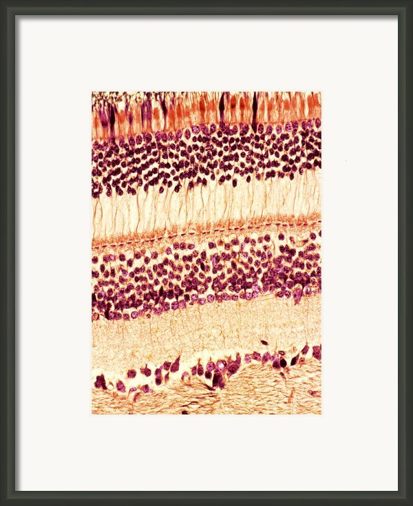 Retina, Light Micrograph Framed Print By Steve Gschmeissner