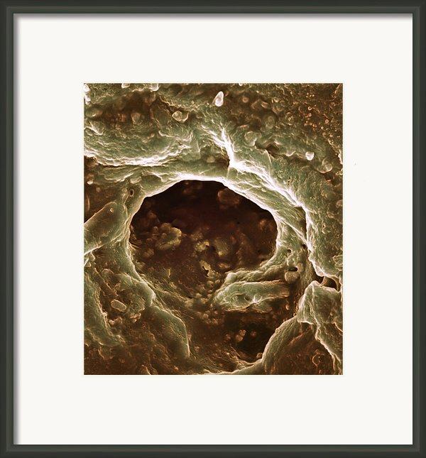 Sweat Pore, Sem Framed Print By Biomedical Imaging Unit, Southampton General Hospital