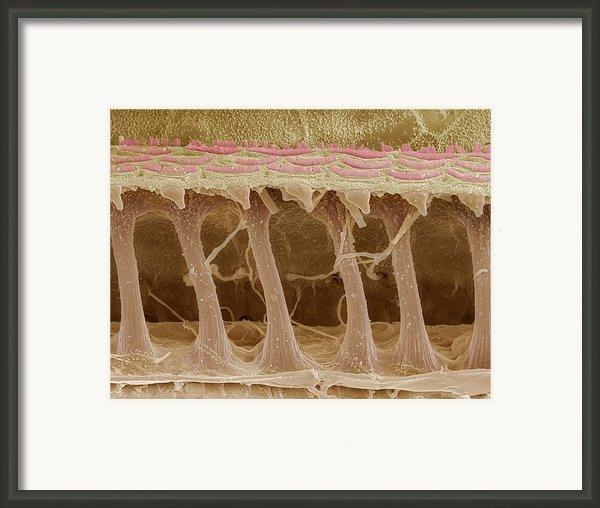 Inner Ear Hair Cells, Sem Framed Print By Steve Gschmeissner