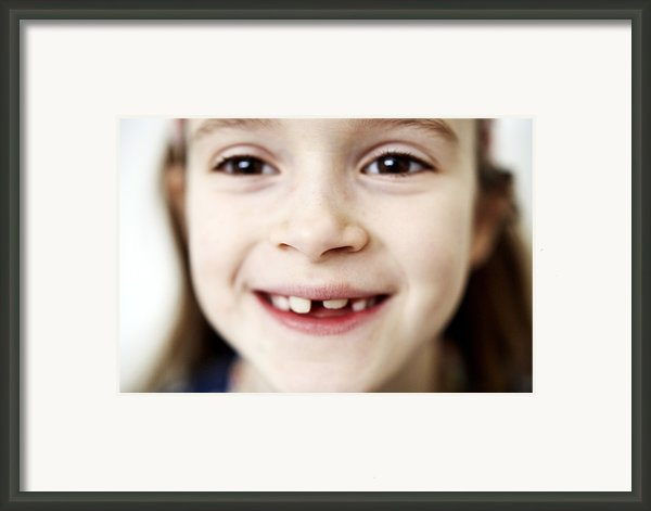 Loss Of Milk Teeth Framed Print By Ian Boddy