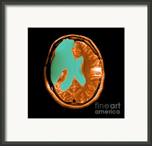 Mri Shows Near Total Hemispherectomy Framed Print By Medical Body Scans