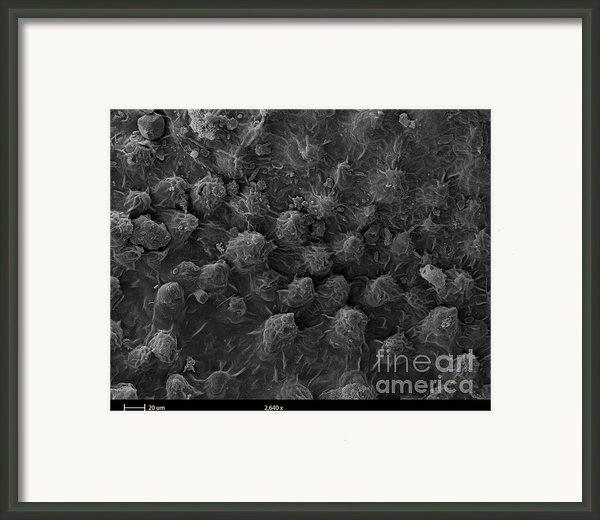 American Toad Skin, Sem Framed Print By Ted Kinsman
