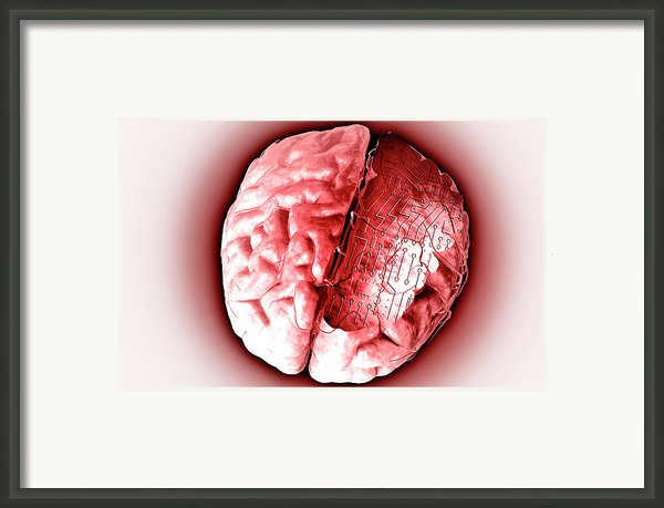 Brain With Circuit Board Framed Print By Medicalrf.com