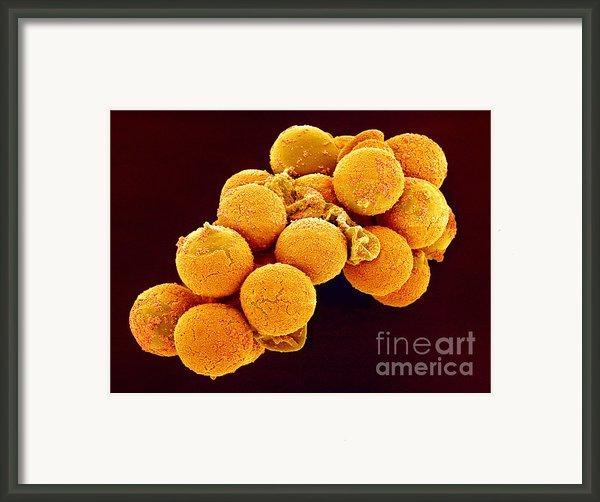 Cedar Pollen Sem Framed Print By Susumu Nishinaga And Spl And Photo Researchers