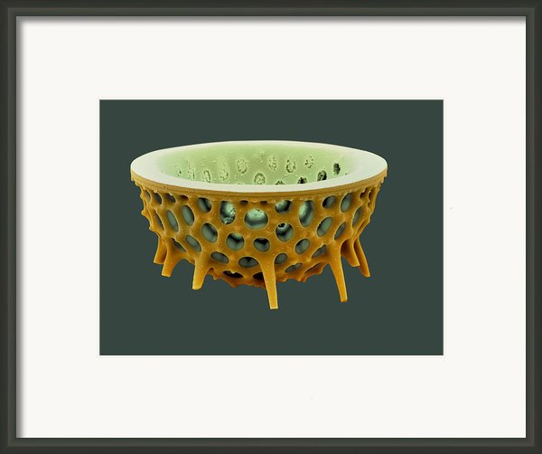Diatom, Sem Framed Print By David Mccarthy