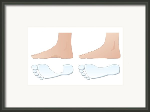 Flat Foot Comparison, Artwork Framed Print By Peter Gardiner