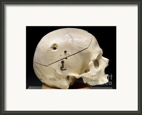 Gunshot Trauma To Skull, 1950s Framed Print By Science Source