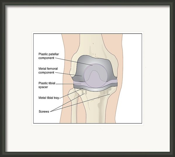 Knee After Knee Replacement, Artwork Framed Print By Peter Gardiner