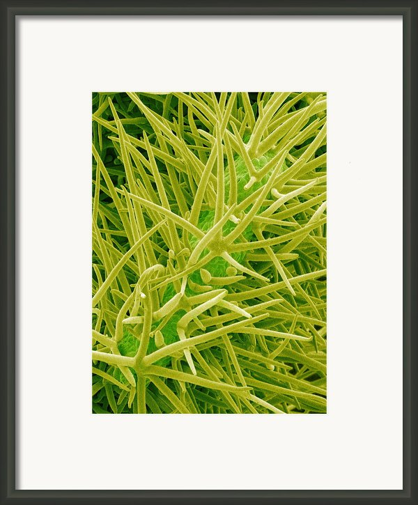 Leaf Surface, Sem Framed Print By Susumu Nishinaga