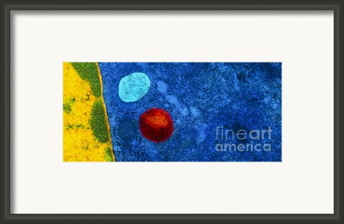 Tem Of Primary Lysosome In Liver Cellsc7036 Framed Print By Cnri And Spl And Photo Researchers