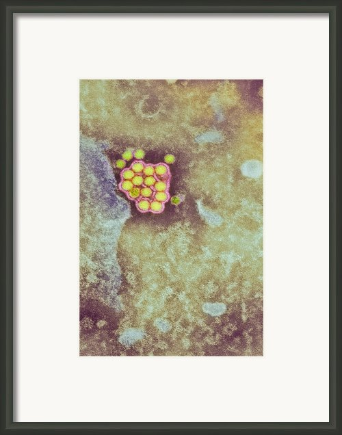 Yellow Fever Virus Particles, Tem Framed Print By London School Of Hygiene & Tropical Medicine