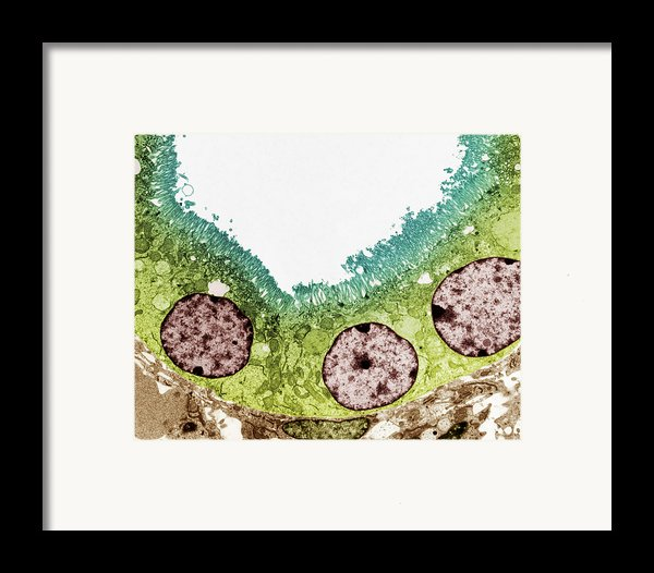 Kidney Tubule, Tem Framed Print By Steve Gschmeissner