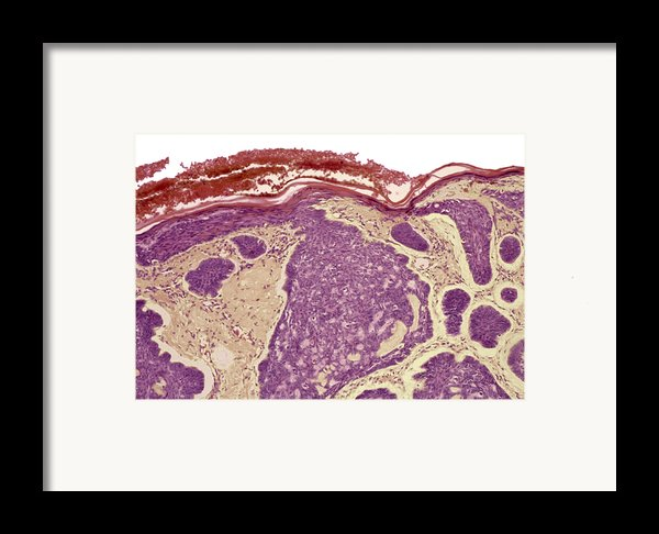 Skin Cancer, Light Micrograph Framed Print By Steve Gschmeissner